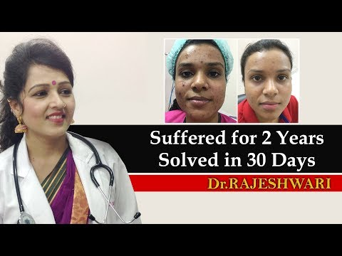 best-skin-doctor-in-india-|-best-cosmetologist-|-patient-review-|-dr-rajeshwari's-health-care