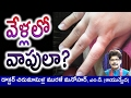 Causes and Ayurvedic Home Remedies for Swollen Fingers in Telugu by Dr. Murali Manohar Chirumamilla