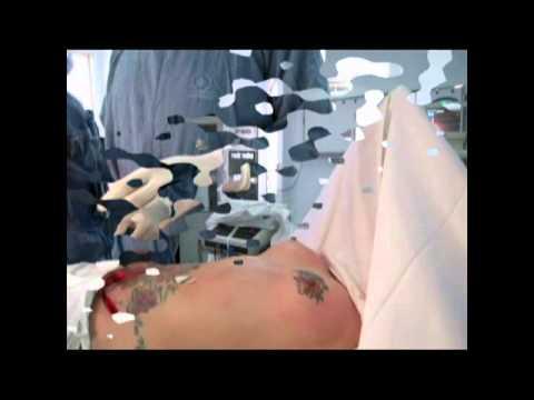 Bs Cao Ngọc Bích: Nâng Ngực Qua Đường Bụng - Kỹ thuật MommyMakeover
