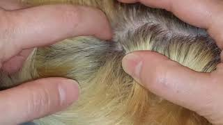 Dandruff scalp scratching picking with fingernails & comb on my son ASMR hair little talking
