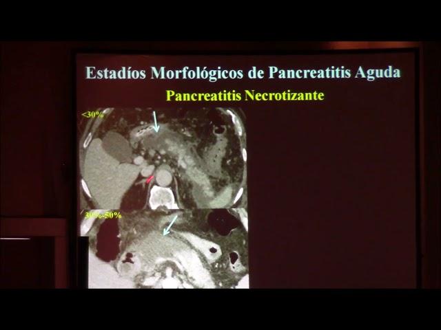 Pancreatitis aguda  Conceptos actuales  Jorge Ahualli