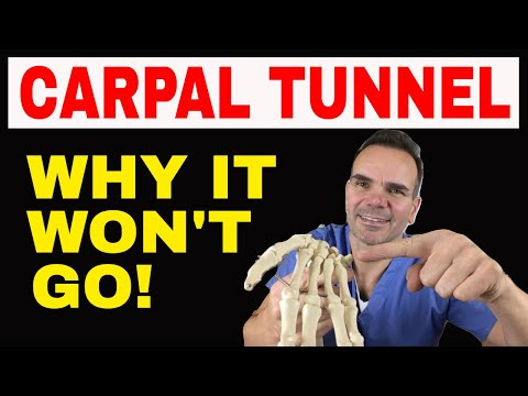 Treating Stubborn Carpal Tunnel Syndrome