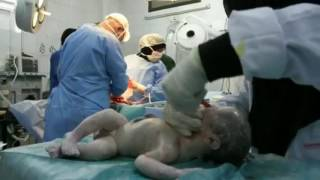 A miracle child - DOCTORS SAVE LIFELESS BABY
