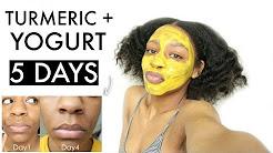 hqdefault - Yogurt Turmeric Mask Acne
