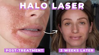Before + after, pros cons of the halo laser treatment at compass dermatology clinic in toronto with skinceuticals more info links: http://bit.ly/2hfoshp ...