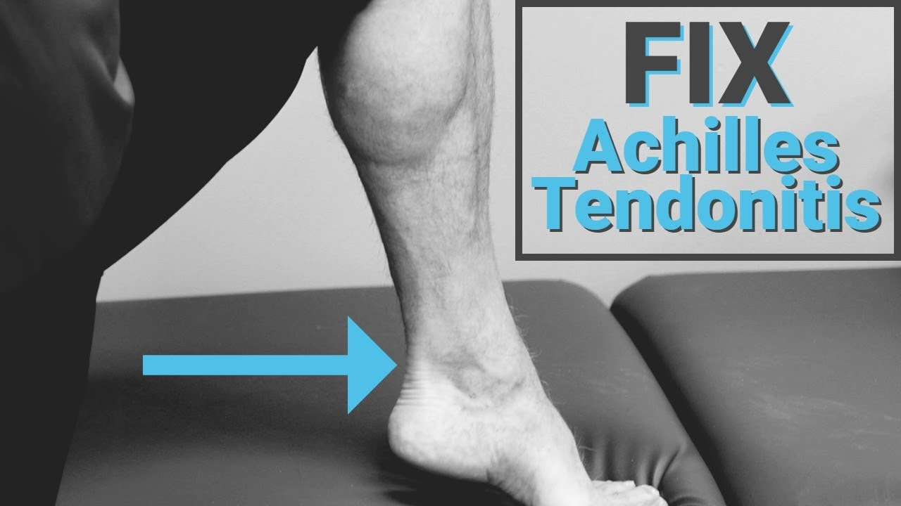 How to Fix Achilles Tendonitis in 3-5