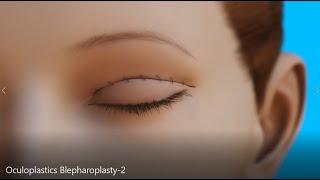 AAO Oculoplastics Blepharoplasty
