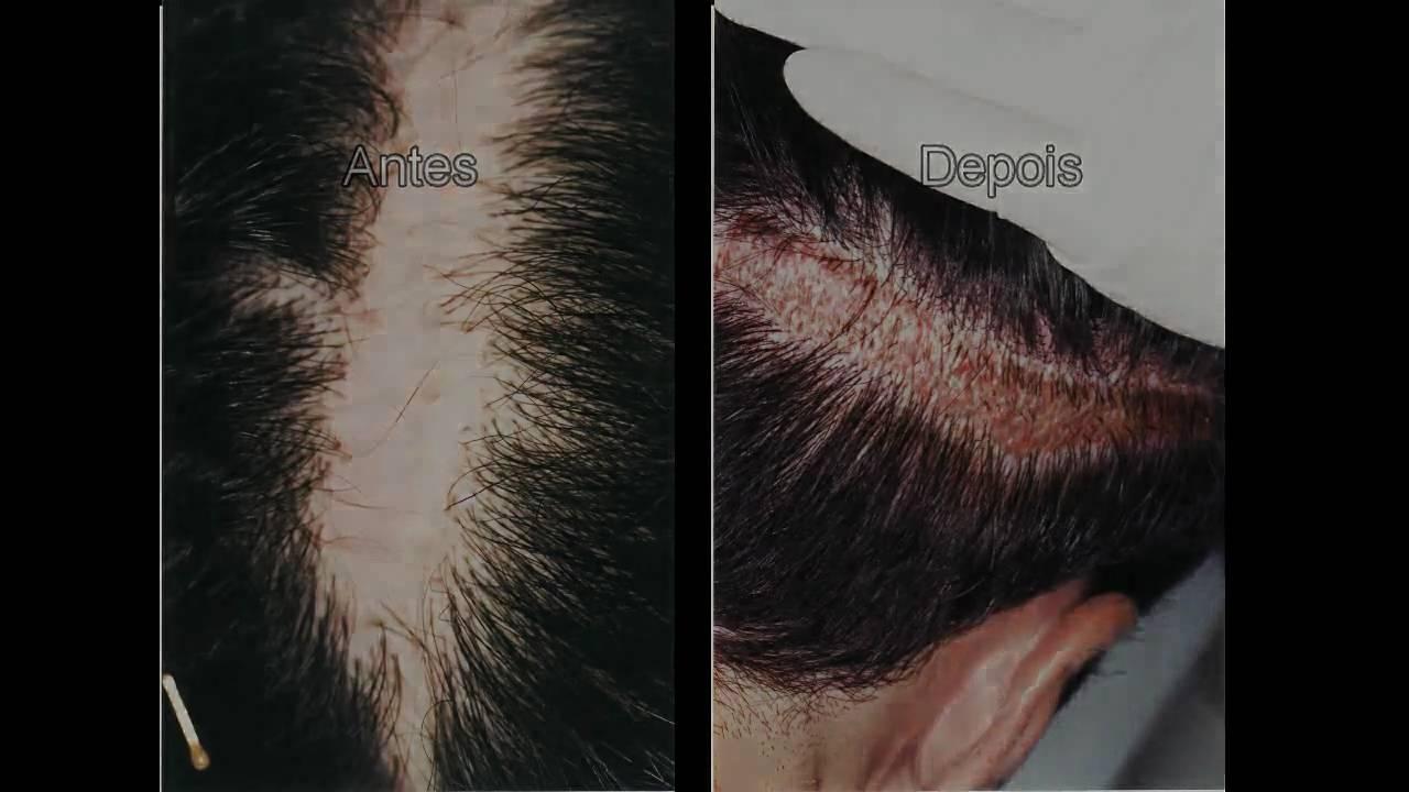 Escova de cabelo na xoxota - 3 2