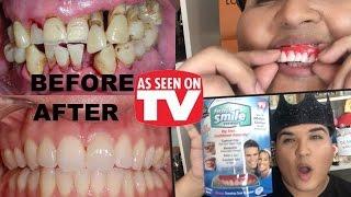 PERFECT SMILE VENEERS REVIEW As Seen on TV!