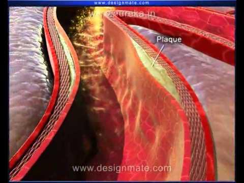 Atherosclerosis (Heart disease)