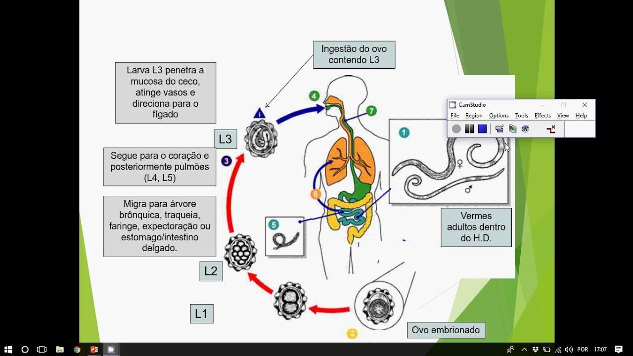 lupus kezelése parazitákkal agykárosodás paraziták kezelésével