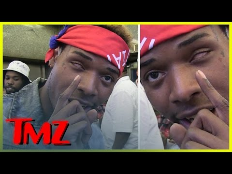 Fetty Wap -- '679' Rapper Explains How He Lost His Left Eye | TMZ