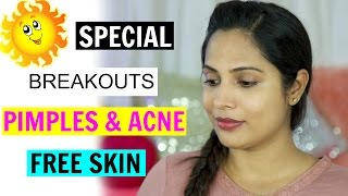 Pimples, Breakout & Acne Free Skin This Summer | ShrutiArjunAnand