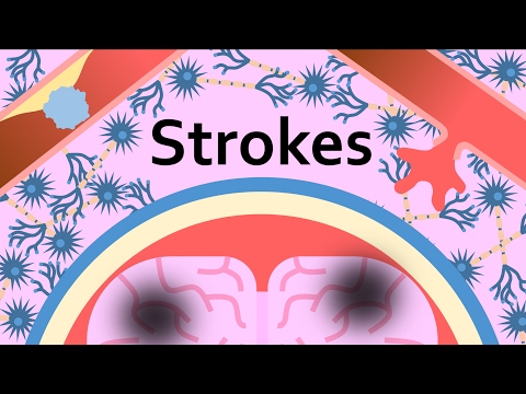 Stroke: Detection, Treatment, and Prevention