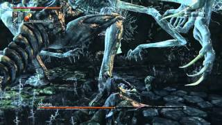 Bloodborne Guide: How to beat Amygdala