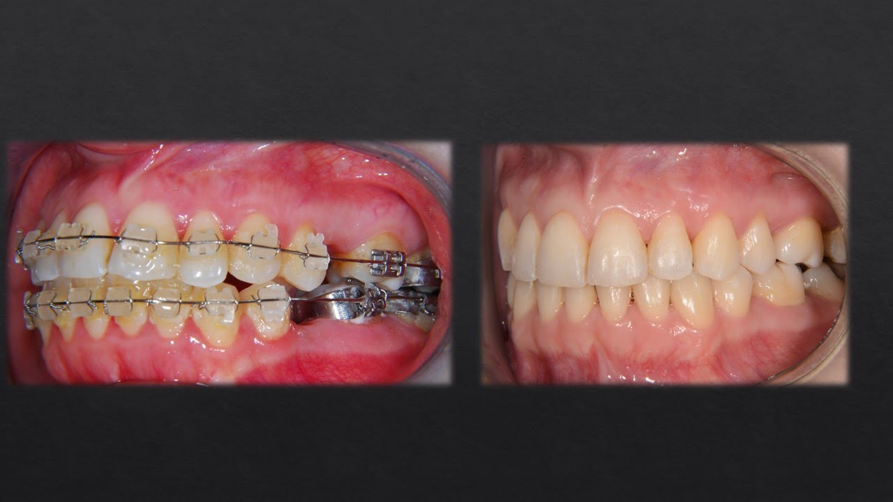 Watch How Orthodontist Corrected Teeth With Braces Youtube