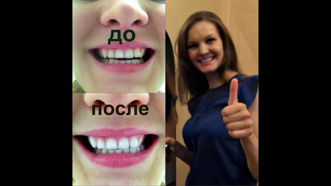 отбеливание зубов альметьевск цены