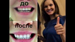 DIY Отбеливание зубов за 2 минуты(Мы все мечтаем о белоснежной улыбке  , но увы это дорогостоящая процедура для большинства. Я вам хочу предл..., 2015-06-09T13:13:21.000Z)
