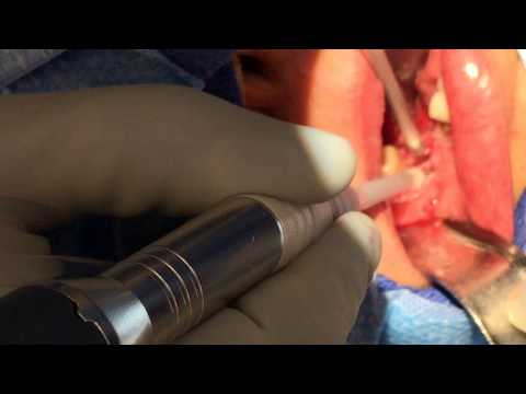 Dr Arthur Using The Ultrasound Knife (Sonopet) To Surgically Excise A Lesion In The Mandibular Bone