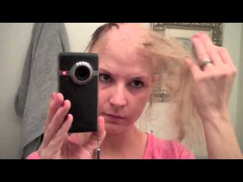 Road to bald-dom (Last 5 days of Chemo hair loss Process)