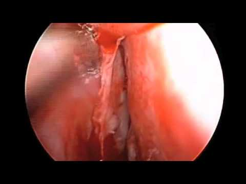 Deviated Nasal Septum Repair: Endoscopic Septoplasty in HD