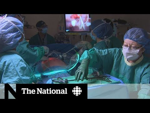 Is Weight-loss Via Gastric Bands Worth The Price Tag? | CBC Marketplace