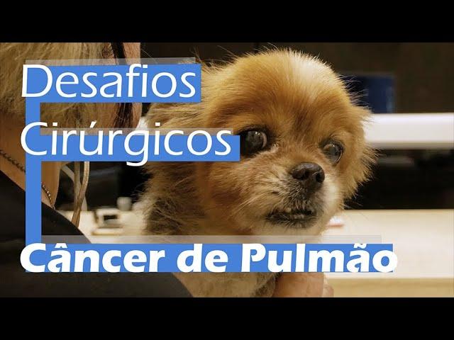 Desafios Cirúrgicos: Câncer de Pulmão