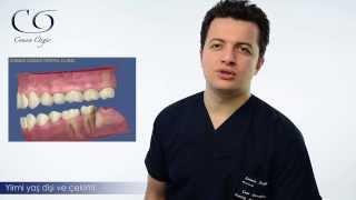 Yirmi yaş dişi çekimi ( 20 yaş dişi ) nasıl yapılır? Diş Hekimi Cansın Özgür anlatıyor...