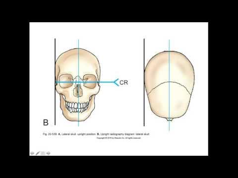 RADT 210 Skull Positioning