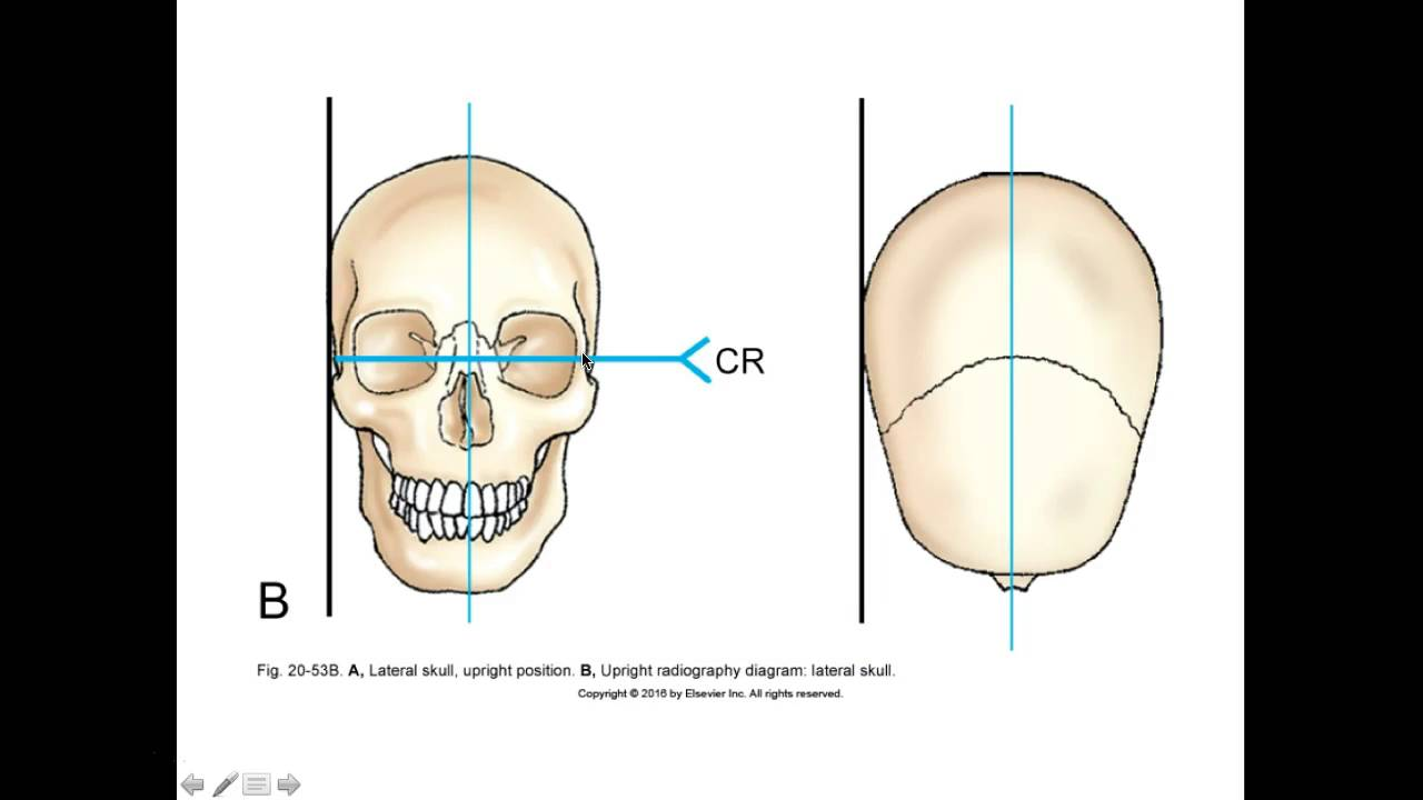 RADT 210 Skull Positioning - YouTube