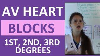 How To Interpret AV Heart Blocks Ekg Heart Rhythms | 1st Degree, 2nd Degree, 3rd Degree Difference