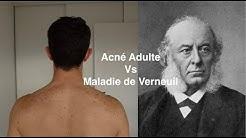 Acné Adulte Vs Maladie de Verneuil