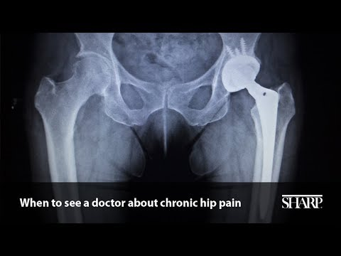 When to see a doctor about chronic hip pain