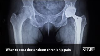 When to See a Doctor about Chronic Hip Pain Video