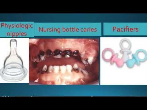 Preventive Orthodontics 1