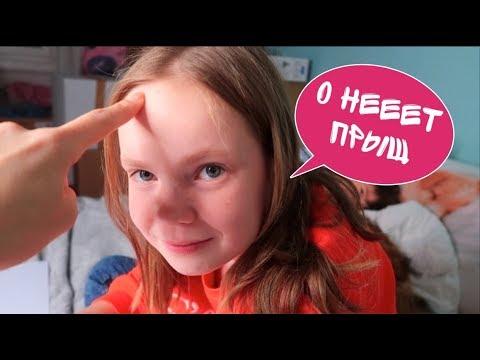 ВЛОГ 11 / Первый ПРЫЩ на лбу / Купили Адвент Календарь для СОБАКИ