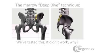 Maximizing Stem Cell Yield from a Bone Marrow Aspiration