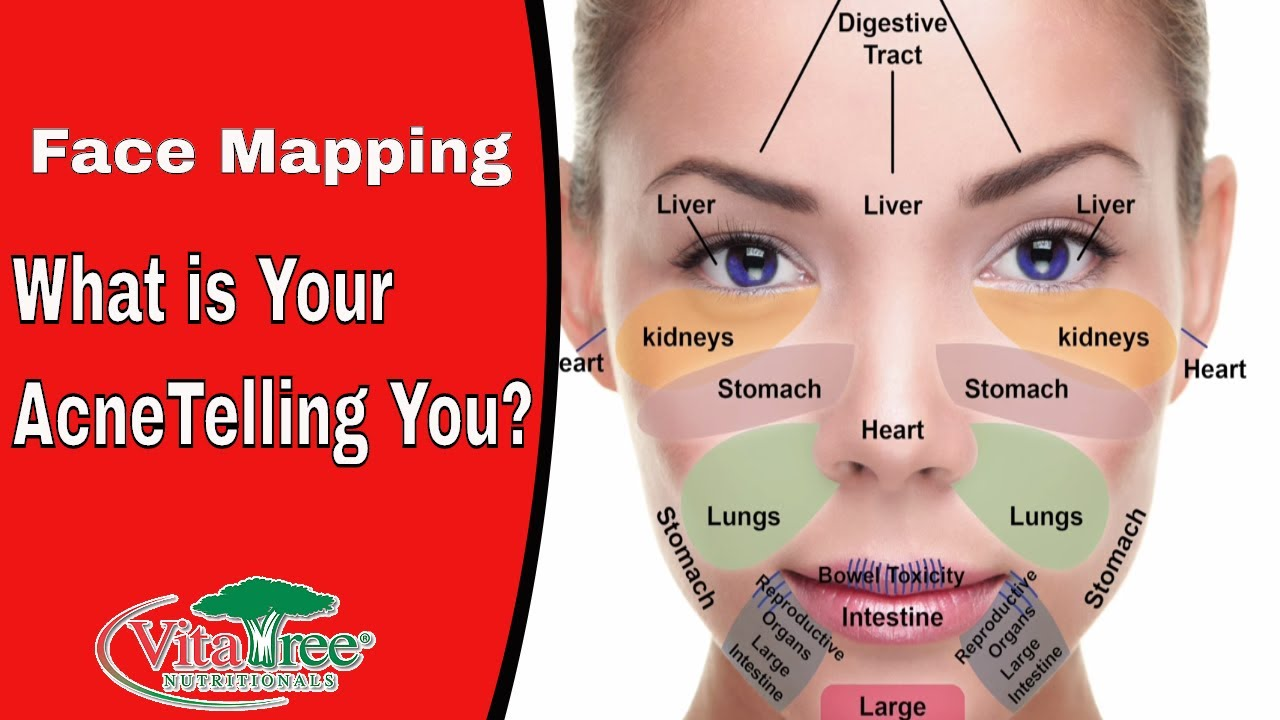 What Is Your Acne Telling You Face Mapping VitaLife Show - Chinese face map for acne