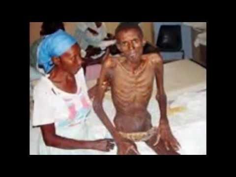 15 foto Penderita Penyakit HIV AIDS