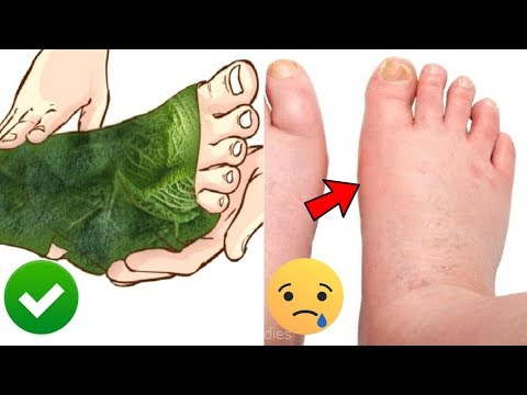 water-retention-after-pregnancy-|-natural-treatments-for-postpartum-edema-#naturalremedies