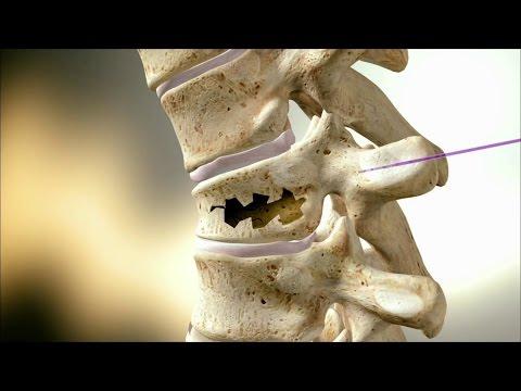 После компрессионного перелома болит спина