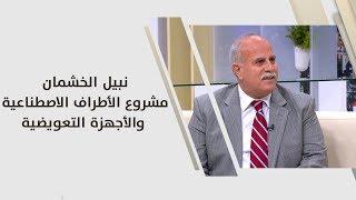 نبيل الخشمان - مشروع الأطراف الاصطناعية والأجهزة التعويضية