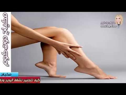 أسهل طرق علاج خشونة القدمين واليدين والتخلص من التشققات بهما | كيف تتجنبين تشقق اليدين؟