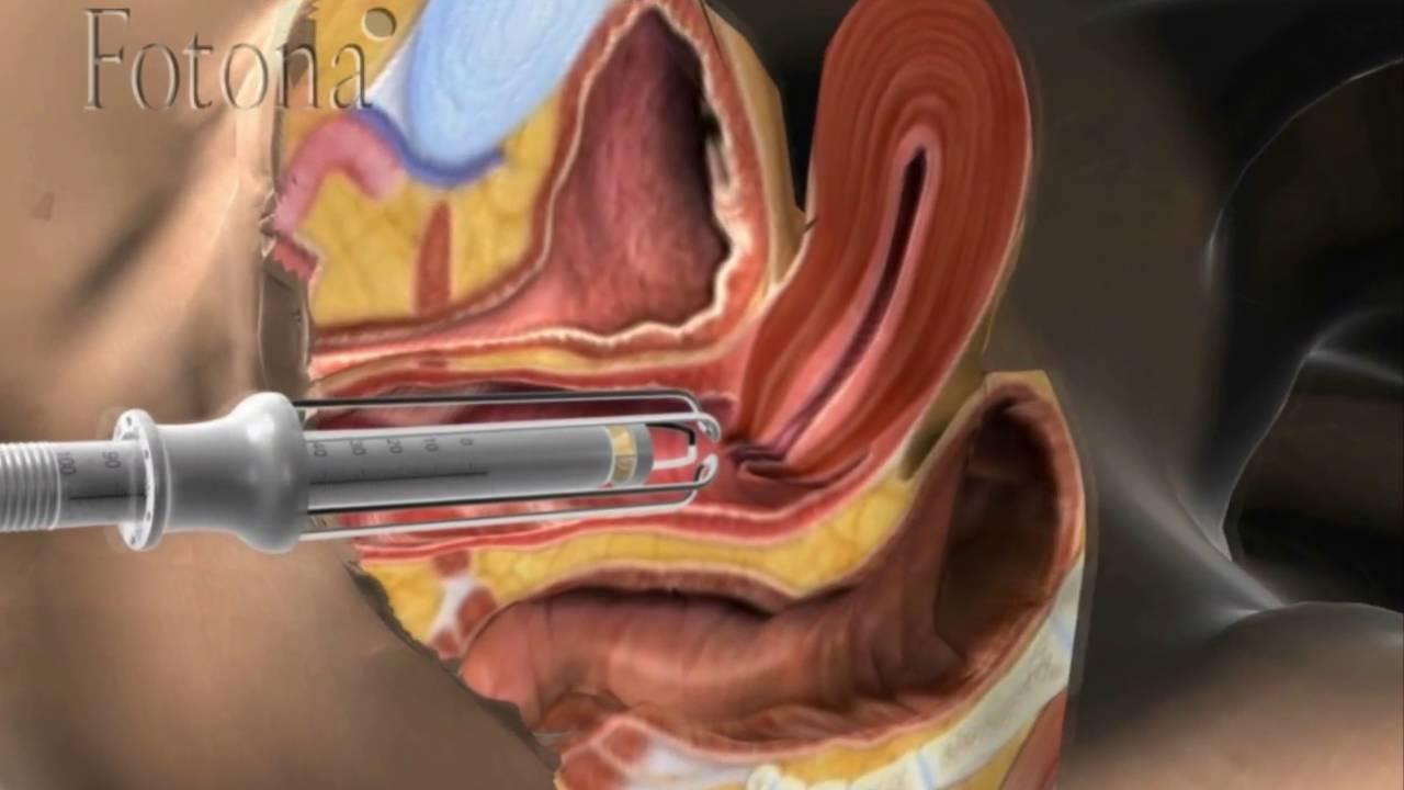 Resultado de imagem para fotona rejuvenescimento vaginal