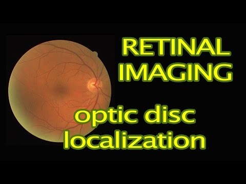 Retinal Image Processing in MATLAB: Optic Disc Localization