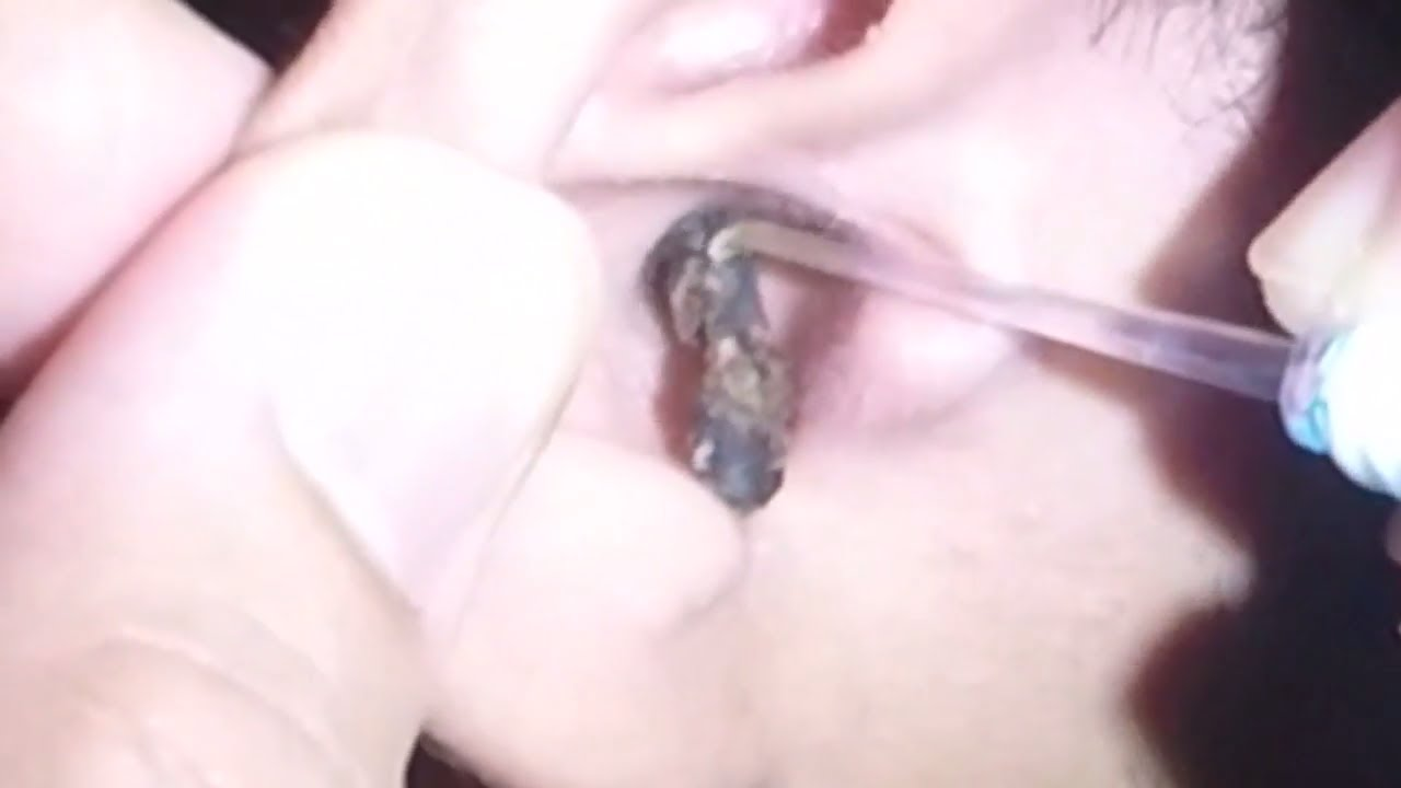 Mans Impacted Black, Dry  Hard Earwax Removal - Youtube