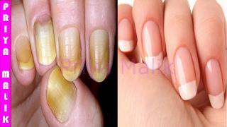 नाखूनों को सफ़ेद करने के लिए सबसे अच्छा तरीका~ Only in 10 minutes | How to Whiten  your Yellow Nails