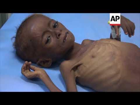 Conditions deterioriate in Yemen amid ongoing civil war
