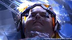 hqdefault - Fda Approval Deep Brain Stimulation Depression