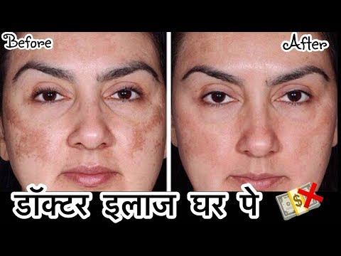 Remove Dark Spots, Pigmentation - Doctor Treatment at Home    How To get Clear Skin   JSuper Kaur